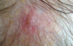 how-i-healed-my-mothers-skin-cancer-at-home-day18