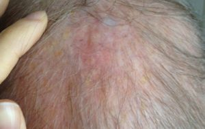 how-i-healed-my-mothers-skin-cancer-at-home-day22