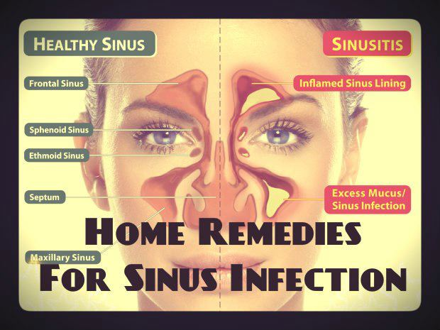 Natural Herbal Remedies For Sinus Infection