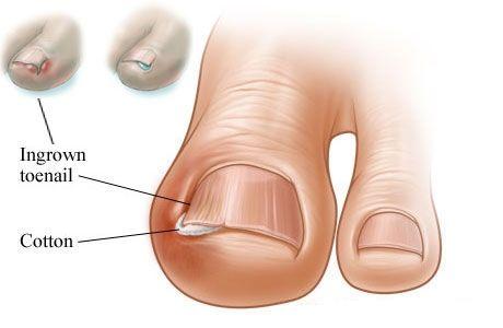 how-to-treat-an-ingrown-toenail-home-treatment
