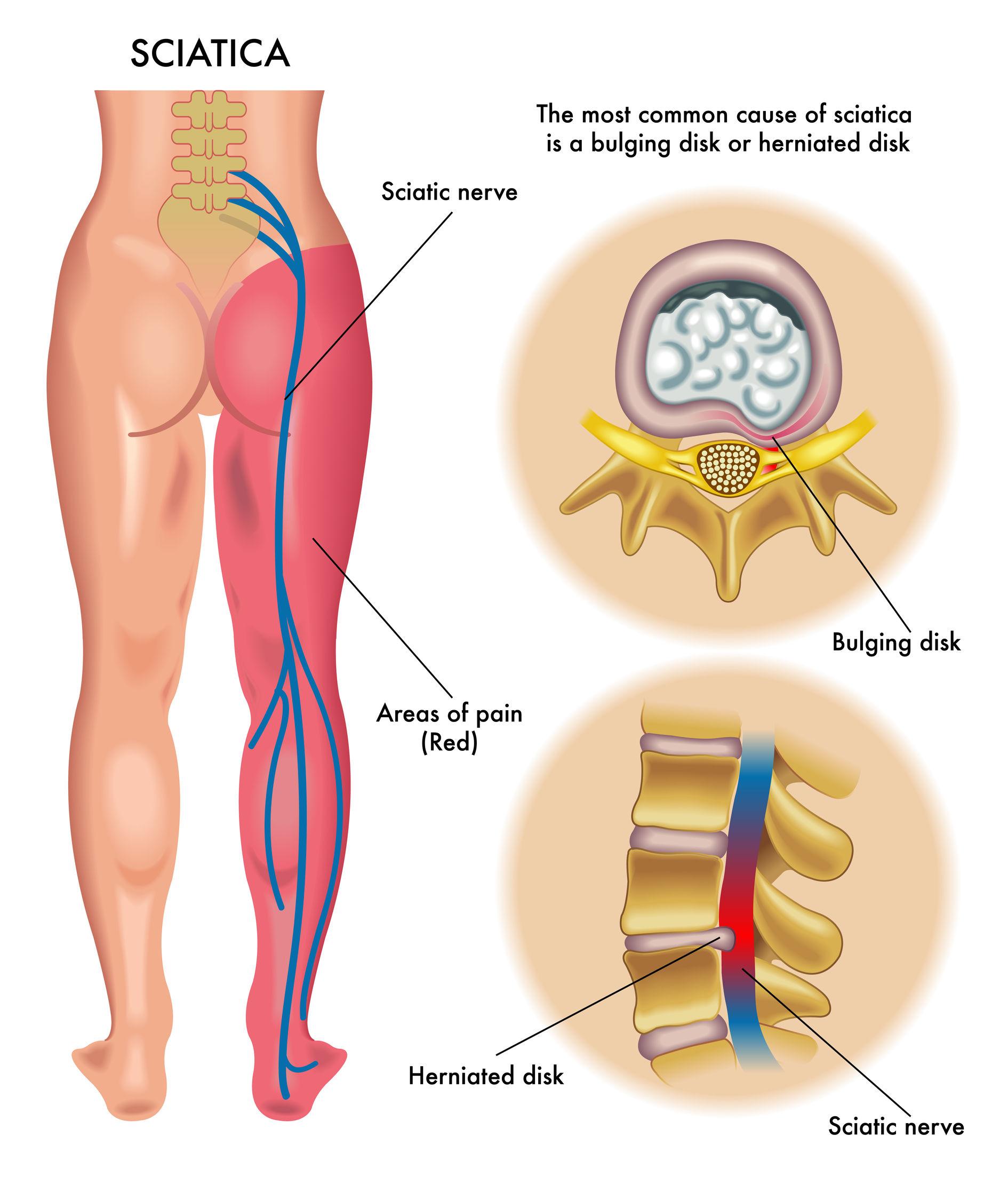 El dolor en lo bajo del vientre de por las inflamaciones en los riñones