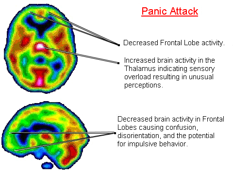 panic-attacks-and-anxiety-linked-to-low-vitamin-b-and-iron-levels