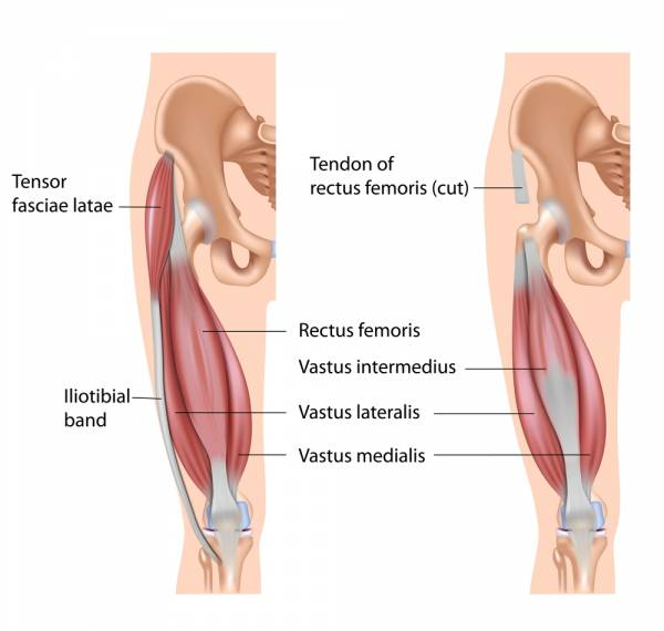 intra articular injection knee steroid