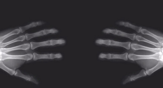 heres-what-happens-to-your-knuckles-when-you-crack-them-video