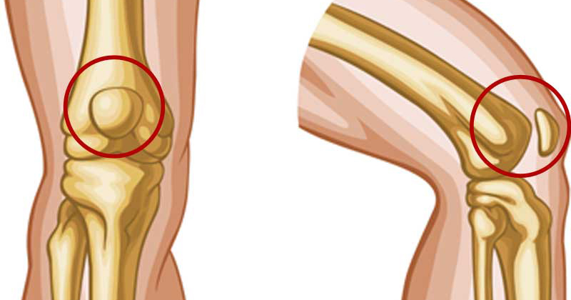 Kết quả hình ảnh cho Knee Pain Relief