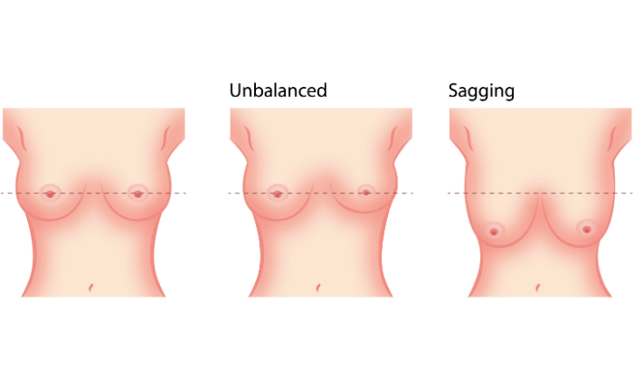 Sagging Breast Pics