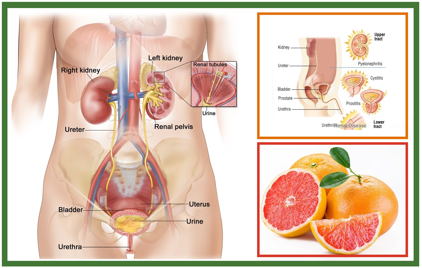 Natural Cures For Staphylococcus Urinary Tract Infection