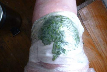 she-put-cabbage-leaves-on-her-knee-at-night-see-the-results-after-month