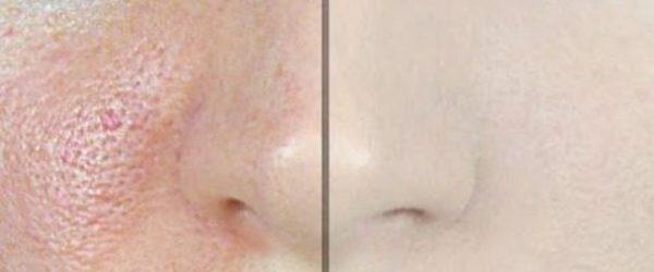 reduce-large-pores-1-ingredient