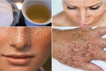 let-wrinkles-freckles-dark-spots-disappear-amazing-homemade-lotion