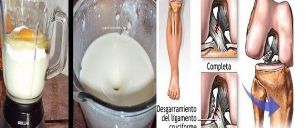 woman-eliminated-knee-joint-pain-days-without-going-doctor-used