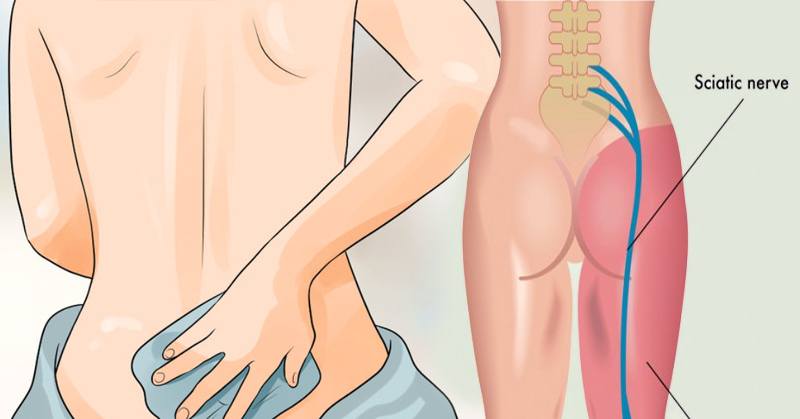 Image result for 8 remedies for sciatica pain you need to try before putting another painkiller in your mouth
