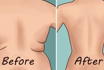 eliminate-back-fat-underarm-flab-4-quick-exercises