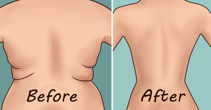 Image result for Eliminate Back Fat and Underarm Flab With 4 Quick Exercises