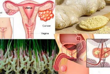research-shows-ginger-destroys-prostate-cancer-ovarian-colon-cancer-better-chemotherapy