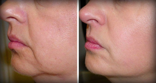 No More Wrinkles and Sagging Skin on Your Face – 2 ...