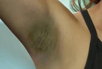 remove-dark-skin-armpits-help-cheap-remedy-can-find-home