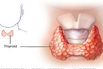 Thyroid Cure Natural Way