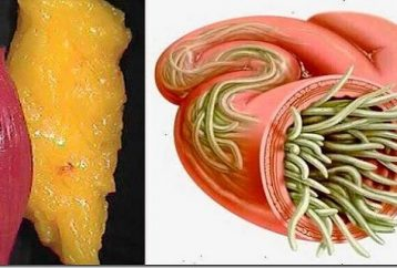 just-use-2-ingredients-empty-deposits-fat-parasites-body-without-effort
