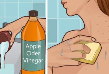 put-apple-cider-vinegar-face-see-happens-age-spotsacne