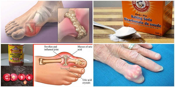 Image result for Prevent Gout and Joint Pain by Removing Uric Acid Crystallization From Your Body. Here is How