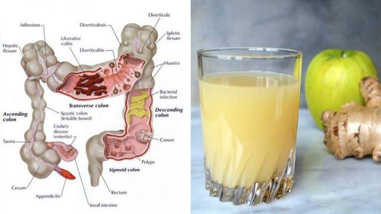 The 3 Juice Colon Cleanse How Apple Ginger And Lemon Can
