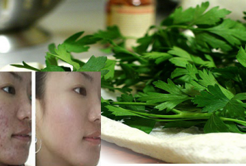 use-leaves-plant-help-wrinkles-acne-dark-spots-sun-allergies