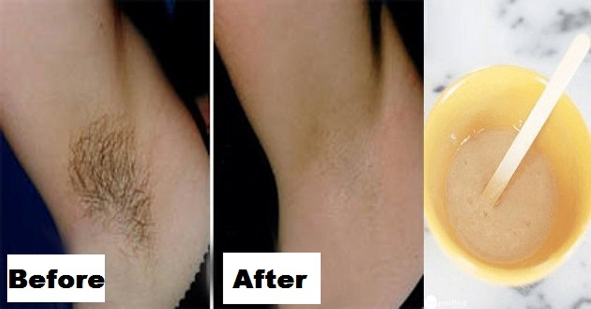 how to get rid of underarm hair painlessly
