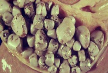 effective-natural-way-destroy-100-gallstones-1-day