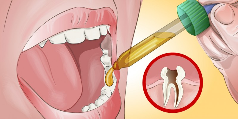 Image result for Here's How I Relieved My Toothache Myself and Amazed My Dentist When I Told Him!