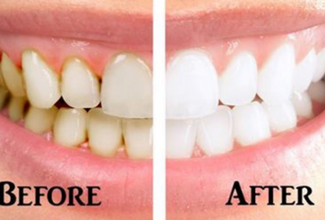reverse-gum-disease-whiten-teeth-homemade-toothpaste