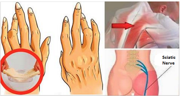 Image result for A Simple And Easy Trick For Removing Arthritis, Back Pain And Sciatica. Works Better Than Pills!