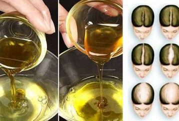 massage-your-scalp-with-this-ayurvedic-oil-you-will-never-lose-a-single-hair-after-this