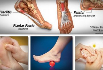 treat-prevent-plantar-fasciitis-home