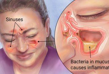 kill-sinus-infection-within-minutes-kitchen