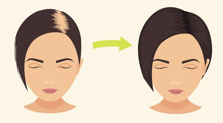 rub-hair-stop-hair-loss-promote-hair-growth