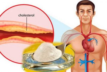 this-is-the-best-medicine-against-cholesterol-and-high-blood-pressure