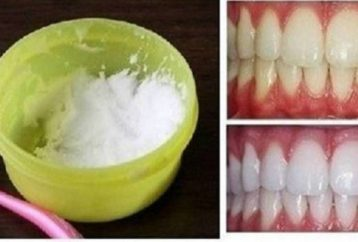 make-teeth-white-home-3-minutes-100-proof-efficacy