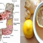 this-ginger-apple-and-lemon-mixture-will-flush-pounds-of-toxins-from-your-body-like-crazy-literally1