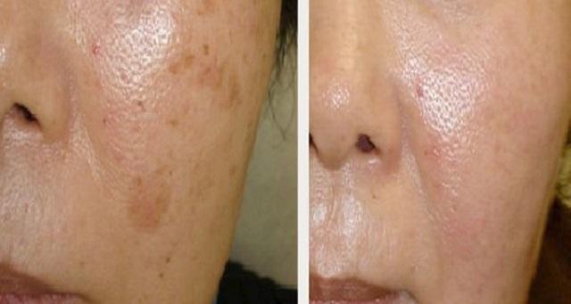 Убрать коричневые пятна на лице в домашних условиях