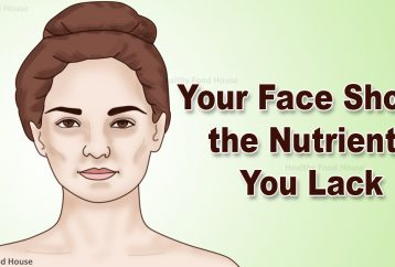 5-signs-of-nutrient-deficiencies-that-are-written-all-over-your-face
