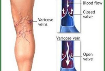 home-remedy-varicose-veins-thrombosis-2-simple-ingredients