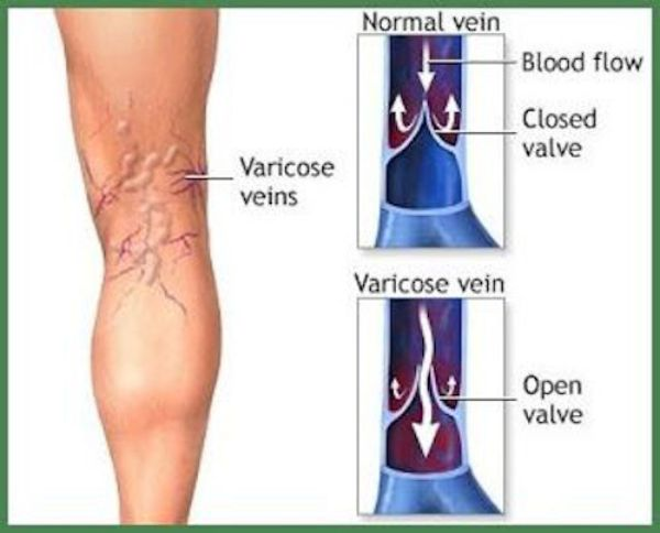 Home Remedy for Varicose Veins and Thrombosis with Only 2 ...