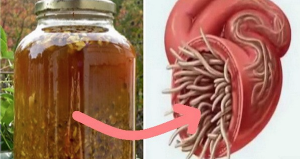 Image result for The Most Powerful Natural Antibiotic Ever, It Cures Any Infection In The Body And Kills Parasites!
