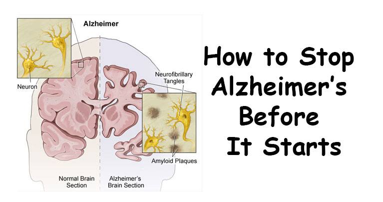10 Things To Do To Prevent Alzheimer S Disease