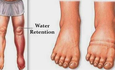 causes-water-retention-avoid