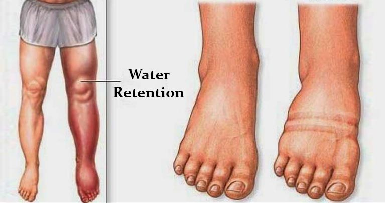 Natural Way To Treat Water Retention