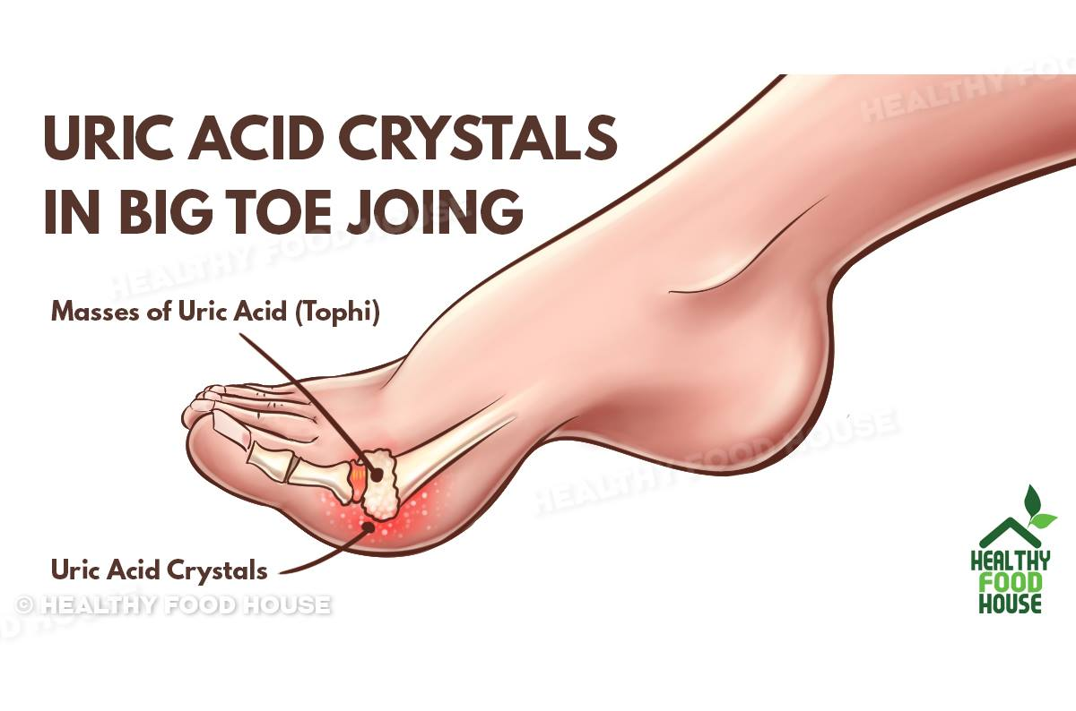 homeopathic treatment for pseudogout gout hip glass how to lower your uric acid fast