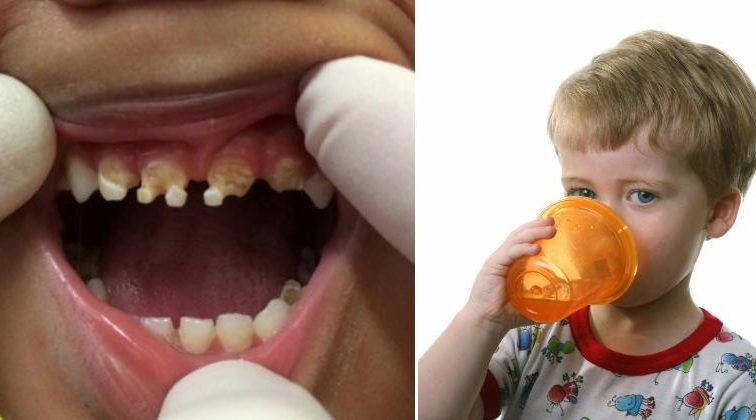 parents-shocked-caused-childs-massive-tooth-decay