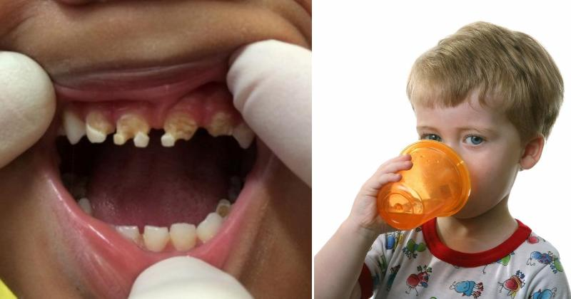 Image result for Parents Shocked By What Caused This Child's Massive Tooth Decay